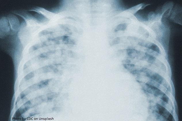 Tbc Corona
